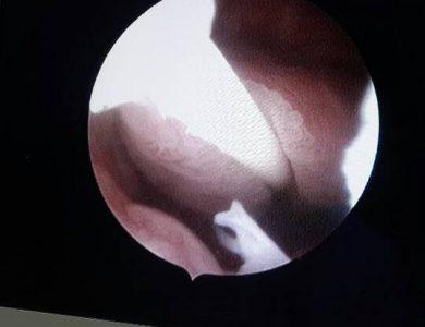 histeroscopia_4
