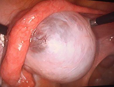 laparoscopia_15