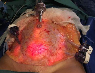 laparoscopia_19